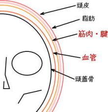 頭痛ケア1